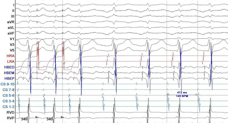 Figura 2. Tracciato endocavitario della tachicardia (Derivazioni di superficie DI, DII, DIII, aVF, aVR, aVL, V1, V3, V5, HRA Atrio destro distale, LRA Atrio destro prossimale, HBED His Distale, HBEM His Medio, HBEP His Prossimale, CS 9-10 seno coronarico prossimale, CS 1-2 seno coronarico distale RVD Ventricolo destro distale, RVP ventricolo destro prossimale, 100 mm/sec).