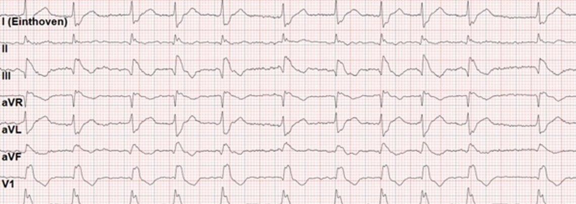 ECG del mese