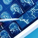 Sulla prevenzione delle malattie cerebrovascolari