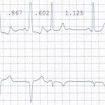 """ECG del mese. Un caso di """"aberranza inversa"""""""