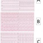 Un solo cardiopalmo per tre diverse aritmie