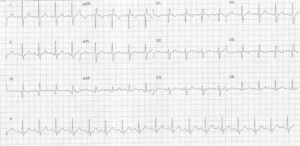 COVID-19 ECG